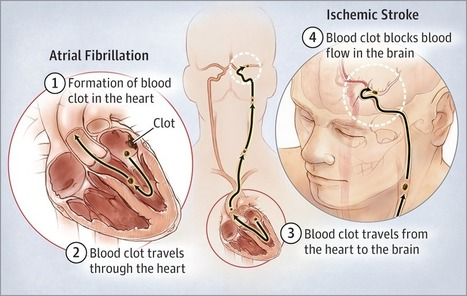 Preventing Stroke in People With Atrial Fibrillation | Heart and Vascular Health | Scoop.it