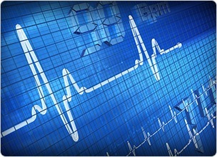 JSB Market Research: Market Digest: Cardiac Rhythm Management Devices 2006 to 2020 - US and Europe (US, Germany, France, Italy, UK, Spain) | Market research report | Scoop.it