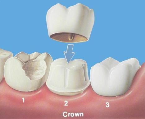 Cheap Dental Crown | Best Dental Hospital Chanda Nagar | Scoop.it