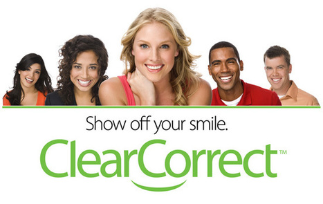 Invisible Braces for high quality & affordable braces | orrelljoo links | Scoop.it