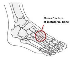 Stress Fracture | Ashutosh Hospital | Ashutosh Orthopaedic Hospital | Scoop.it