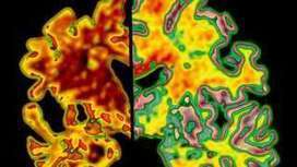 Protein injection hope for Alzheimer's - BBC News | This Week in Alzheimer's News | Scoop.it