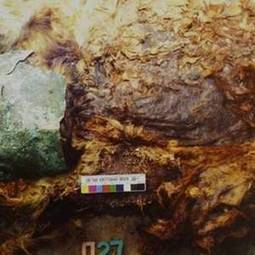 Mummified Fetus Reveals Ancient Surgical Procedure | L'actu culturelle | Scoop.it