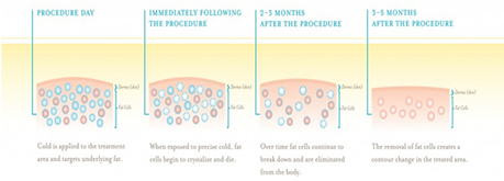 Coolsculpting by Zeltiq | IPL | fillers | coolsculpting | IPL | laser clinic | acne treatment | Scoop.it