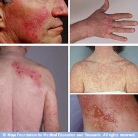Slide show: Common skin rashes - MayoClinic.com | health and skin care | Scoop.it