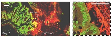 Wound-healing intestinal bacteria: Like shrubs after a forest fire | Sustain Our Earth | Scoop.it