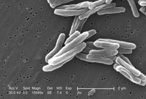 Para leer:  El regreso de la tuberculosis | infomedicina | Scoop.it