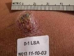 New therapy for cutaneous leishmaniasis : Nature Middle East   Parasites   Scoop.it