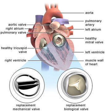 aortic and mitral heart valve repair  or replacement surgery  | Transcatheter Treatment of Mitral Regurgitation | Scoop.it