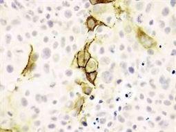 Publican la base de datos más grande de genes del cáncer | Busqueda de informacion medica en la web | Scoop.it