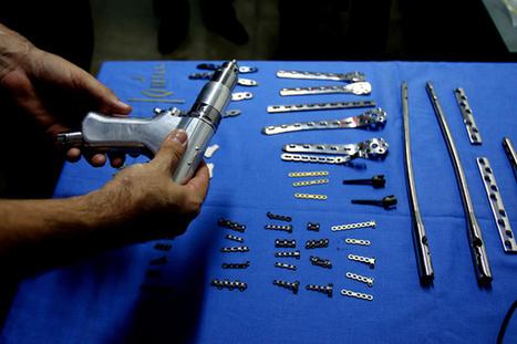 Ingenieros colombianos desarrollan prótesis biocompatibles para reducir número de cirugías | Millanettic y la Innovación, la creatividad y las ideas | Scoop.it