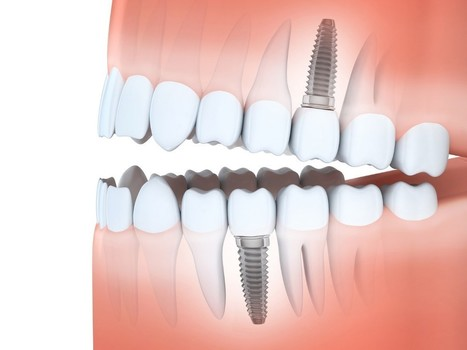 Get Your Confidence Back with Dental Implants for Your Missing Teeth | Downtown Dental | Scoop.it