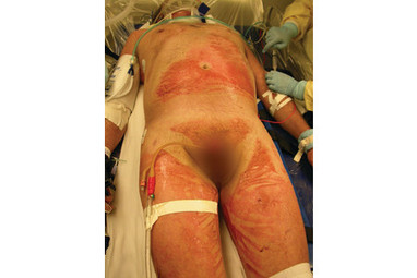 Chemical Burn Care: A Review of Best Practices | Team Decon | Scoop.it