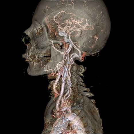 Latest Generation of CT Scanners Provide Science Fiction-Like View of the Body | Medical Researches | Scoop.it