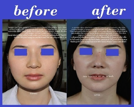 Osseous Genioplasty Photos Thailand | Bangkok Aesthetic Surgery Center | The Best Plastic Surgery Clinic In Thailand | Scoop.it