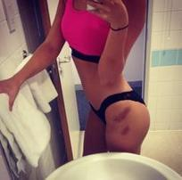 Lucy Mecklenburgh Posts Photo Of Horrendous Bruises After Tumble Training - Yahoo Celebrity UK | Emotional Photograph | Scoop.it
