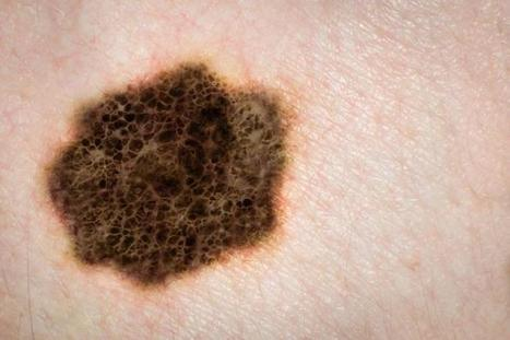 Melanoma rates have doubled over the past 30 years, say CDC | Energy, Enviroment, Waste processing, Green&renevables, green analyzes and forecasts, waste analyzes and forecasts, waste equipement, wind energy, solar energy, geothermal, water energy, nonconventional energy | Scoop.it