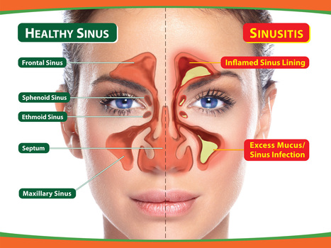 Sinusitis Treatment | Sinus Infection – Where Salt is The Best Natural Option Out There | Home Salt Therapy and Saltair Salinizer Tips for Best Results | Scoop.it