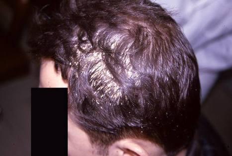 Hair Diseases can cause Hair Loss | Hair Transplantation Turkey | Scoop.it