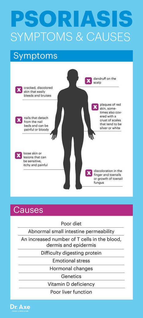 The REAL Cause of Psoriasis Your Dermatologist Isn't Telling You About   Home Remedies   Scoop.it