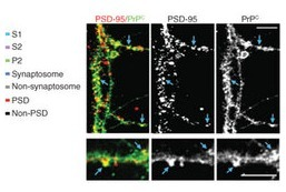 Alzheimer amyloid-β oligomer bound to postsynaptic prion protein activates Fyn to impair neurons | Neuroscience_topics | Scoop.it