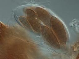 Genome of Clathrospora elynae (Dothideomycetes)   Plant Genomics   Scoop.it
