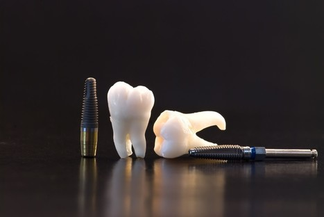 Teeth Loss Affects More Than Just Looks: Why You Need Dental Implants | Dr. Anthony Farole, D.M.D. | Scoop.it