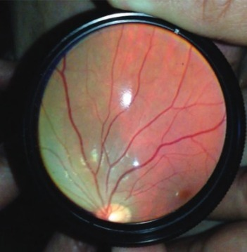 How to use an iPhone to diagnose eye disease | KurzweilAI | HealthITStuff | Scoop.it