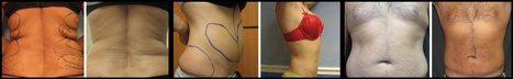 Tumescent Liposuction In Florida | Invasive Cosmetic Surgery - ScupltHD | Liposuction | Scoop.it