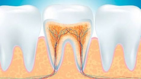 Root Canal Can Relieve Tooth Pain and Save Your Smile | Dental Clinic | Scoop.it