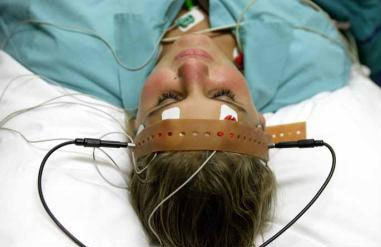 Study finds electrotherapy dampens brain connections | Psychology and Brain News | Scoop.it