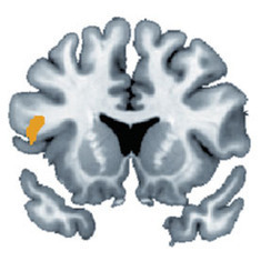 Neural Responses Reveal Our Optimistic Bent: Scientific American | Brain Momentum | Scoop.it