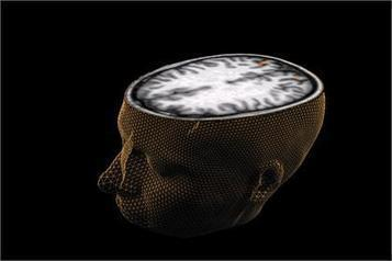 New technique makes brain see-through to enable 3D analysis of fine structures | Geospatial Pro - GIS | Scoop.it