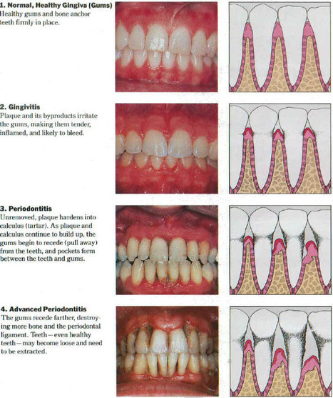 Periodontal Disease – The Worst in Dental Diseases   Weight Loss and Health Care   Scoop.it
