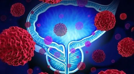 RiseEarth : Prostate Cancer Prevention: 12 Ways to Protect Your Prostate | Organic Farming | Scoop.it