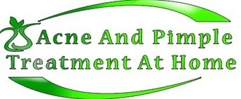 Acne And Pimple Treatment At Home - Acne And Pimple Treatment At Home | Acne And Pimple Treatment At Home | Scoop.it