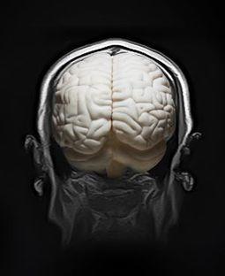 El ADN manda: o alzhéimer o cáncer | Genética, evolución e  Ingeniería genética | Scoop.it
