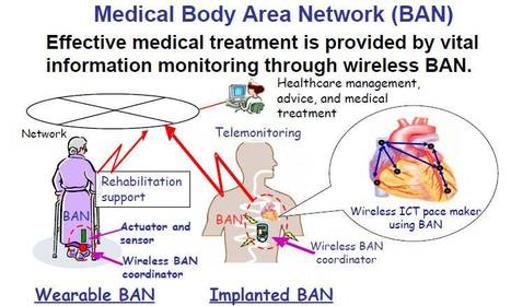 Medical Body Area Networks First Report and Order   Etika a souvislosti s projekty   Scoop.it