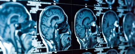 Scientists say they've identified the physical source of depression in the brain   The future of medicine and health   Scoop.it