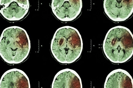 Stanford researchers 'stunned' by stem cell experiment that helped stroke patient walk | Brain Injury | Scoop.it