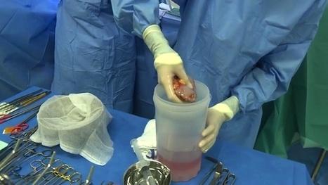 Greffe de rein intrafamiliale : une solution à la pénurie d'organes ?   Santé   Scoop.it