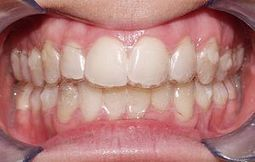 An Invisible Christmas Gift? Yep, Invisalign! | General | Scoop.it