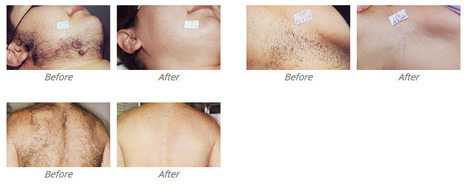 The Best Laser Hair Removal Clinic | Ultimate Guide to Laser Hair Removal | Scoop.it