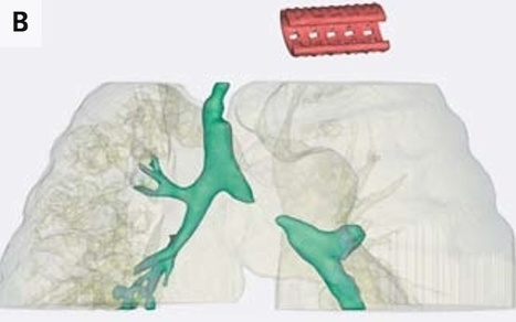 Doctors Use a Dissolvable 3D-Printed Tracheal Splint to Save a Baby's Life | Healthcare 3.0 | Scoop.it