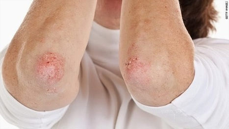 Why Are Psoriasis Herbal Remedies Becoming So Popular? | Health And LifeStyle | Scoop.it