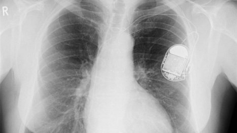 The pacemaker of the future might be made of heart cells | Healthcare Technology and Miscellaneous Healthcare Issues | Scoop.it