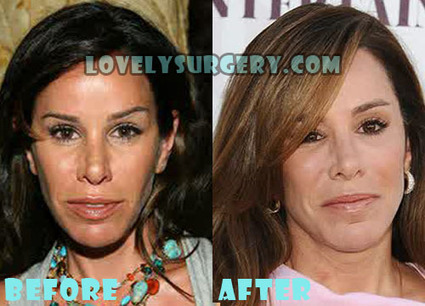 Melissa Rivers Plastic Surgery Before and After Photos | Celebrity Plastic Surgery | Scoop.it