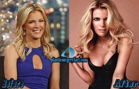Megyn Kelly Plastic Surgery: Fact or Rumor? | Celebrity Plastic Surgery News | Scoop.it