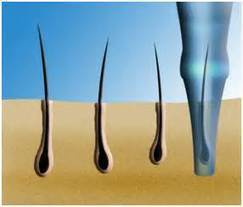 Evolution and Development Path of Hair Transplant Methods   Hair and Skin   Scoop.it