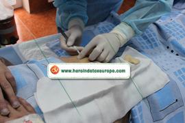 Behandlung mit naltrexon implantat | Drogenentzugsklinik | Drogen entzug | Scoop.it